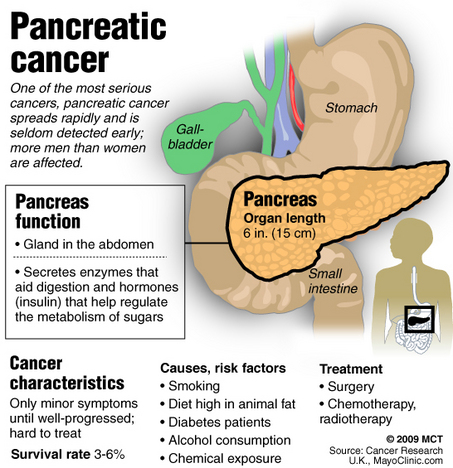 7 warning signs of pancreatic cancer, Human Body