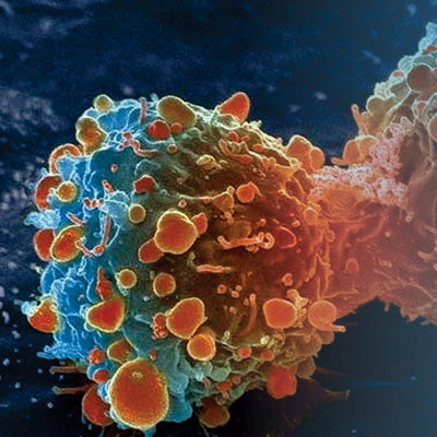 2014-05-13-top-5-causes-for-cancer