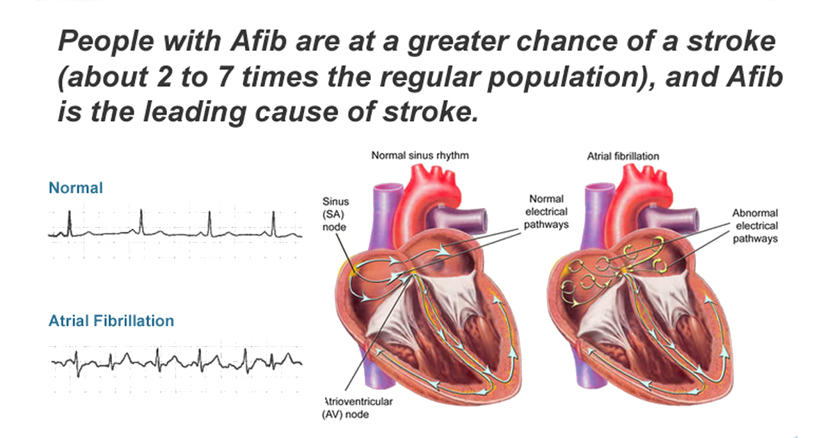 6 serious signs of atrial fibrillation and stroke, Sphenoid