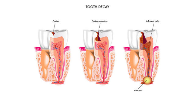 tooth decay cycle