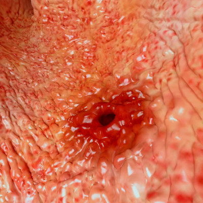 stomach peptic ulcer