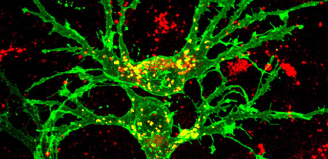 cellular garbage contributes to neurodegenerative diseases