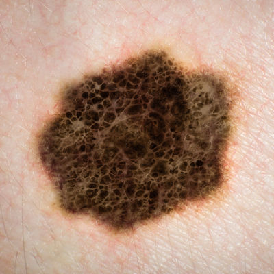 woman's mole turns out to be melanoma cancer