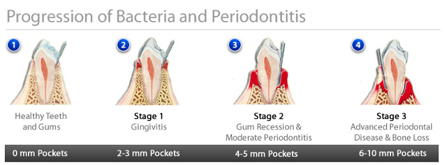 gum disease progession