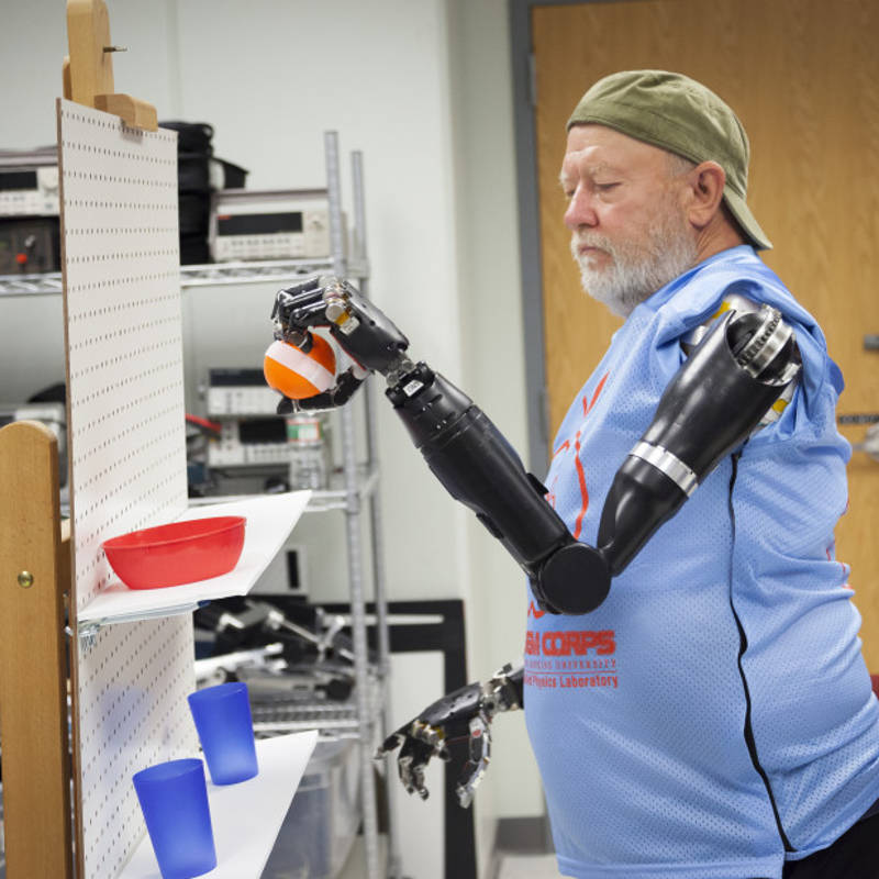 man with no arms control two robotic prosthetics