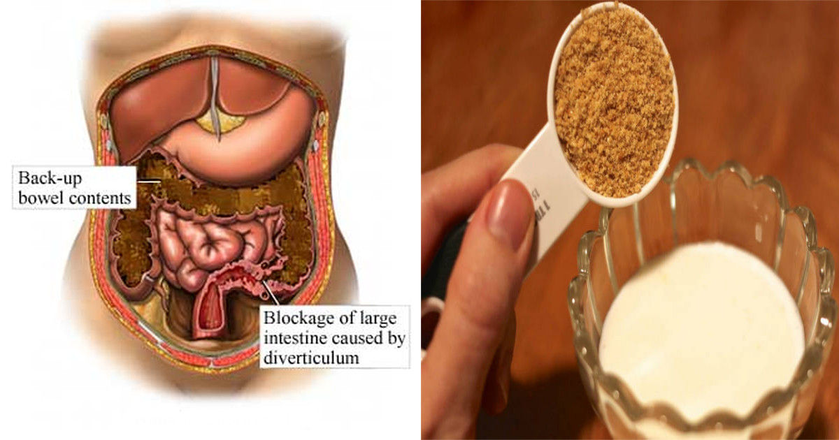 colon cleansing remedy