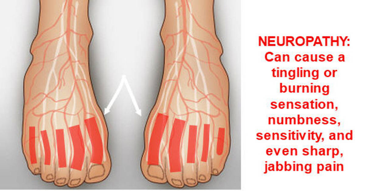 Fish Oil Helps Relieve Pain Caused By Diabetic Neuropathy