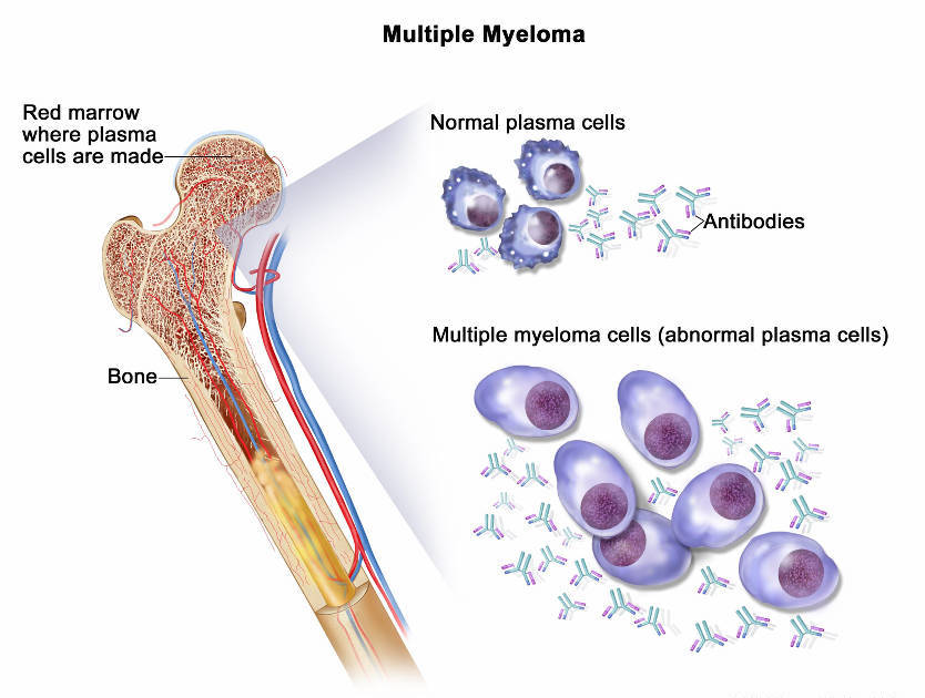disease diary leukemia Acute lymphoblastic leukemia (all)  significant risk of disease occurs when a person inherits several of these mutations together.