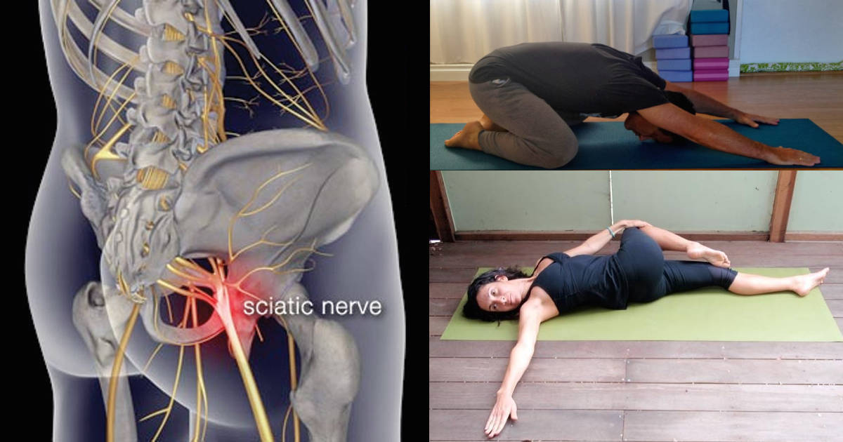 yoga sciatica pain