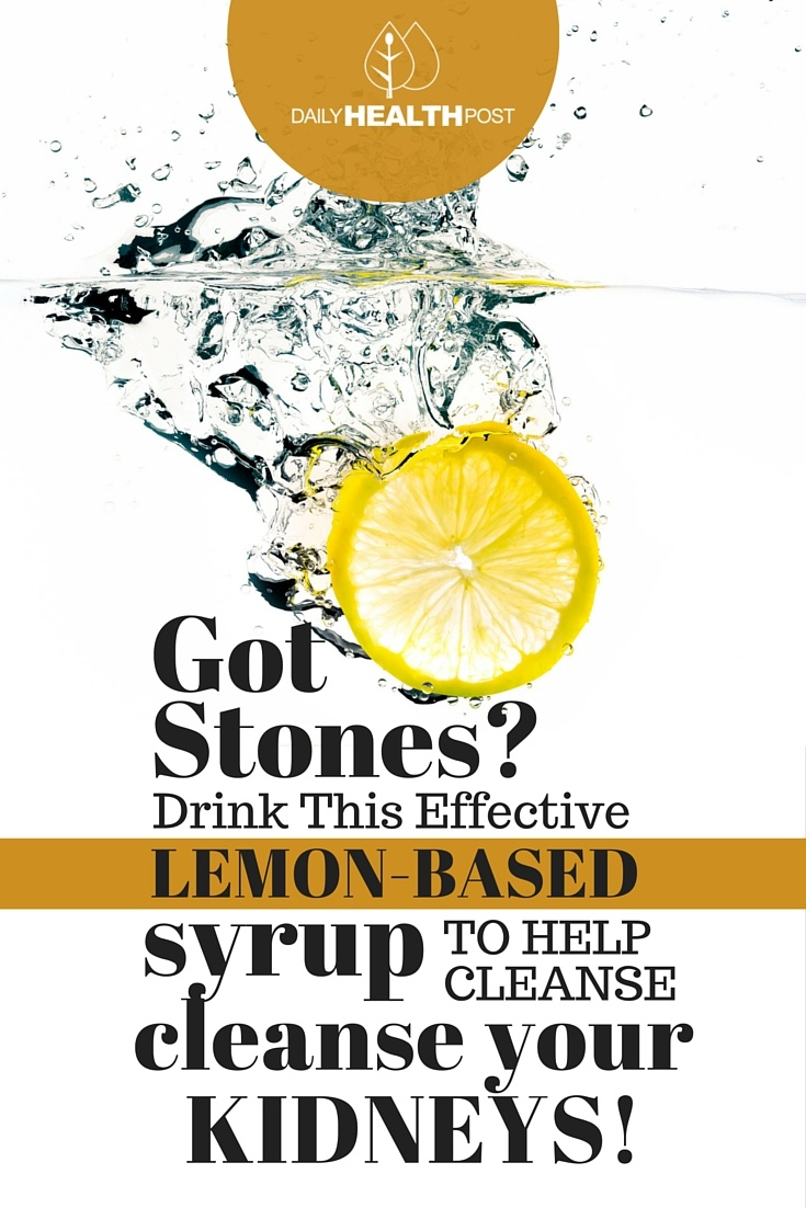 Got Stones- Drink This Effective Lemon-Based Syrup To Help Cleanse Your Kidneys!