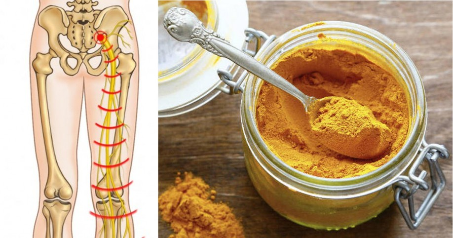 turmeric spice is effective for sciatica pain, Skeleton