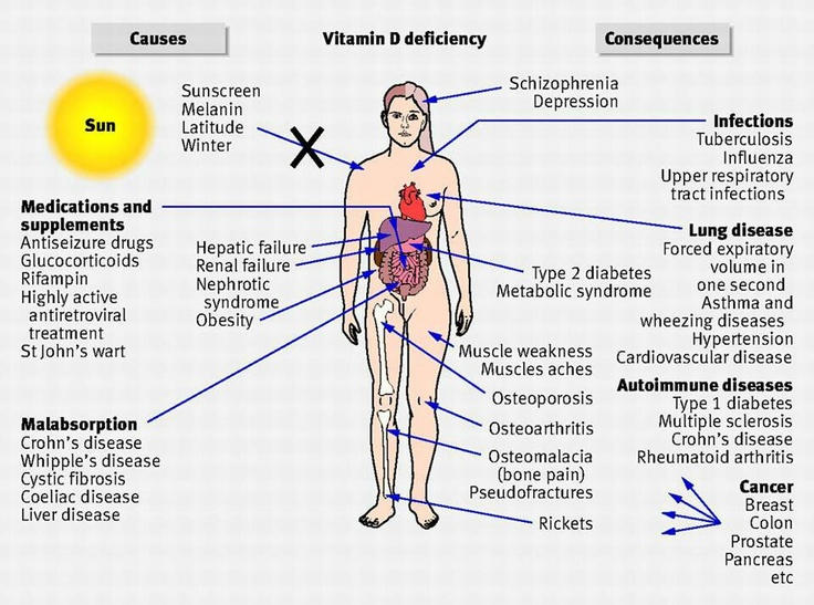 signs of vitamin d deficiency