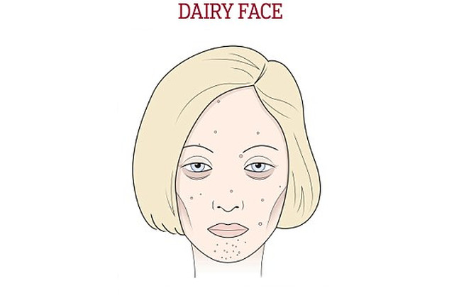 dairy face