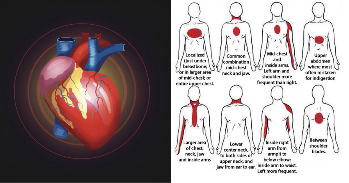 7 warning signs of an imminent heart attack that women shouldnt heart attack symptoms women ccuart Images