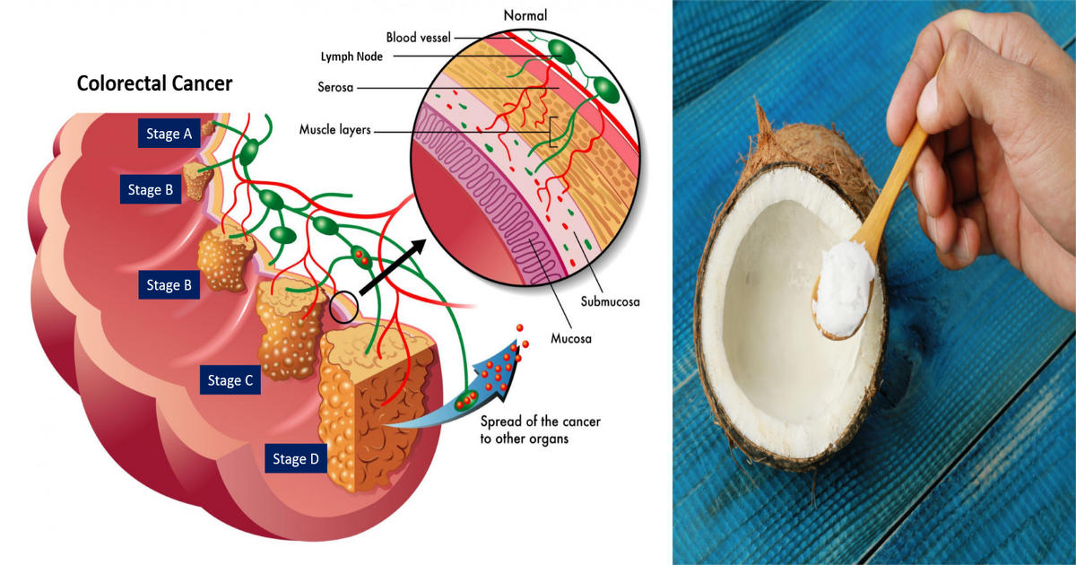 colon cancer and coconut oil