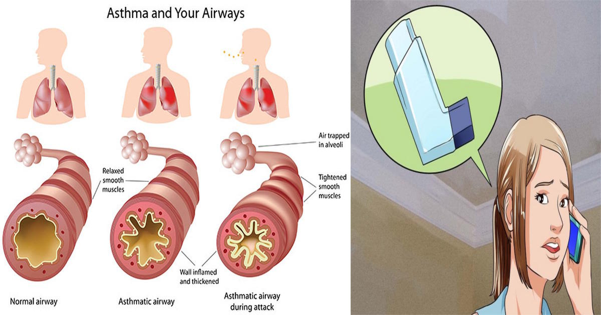 survive asthma attack
