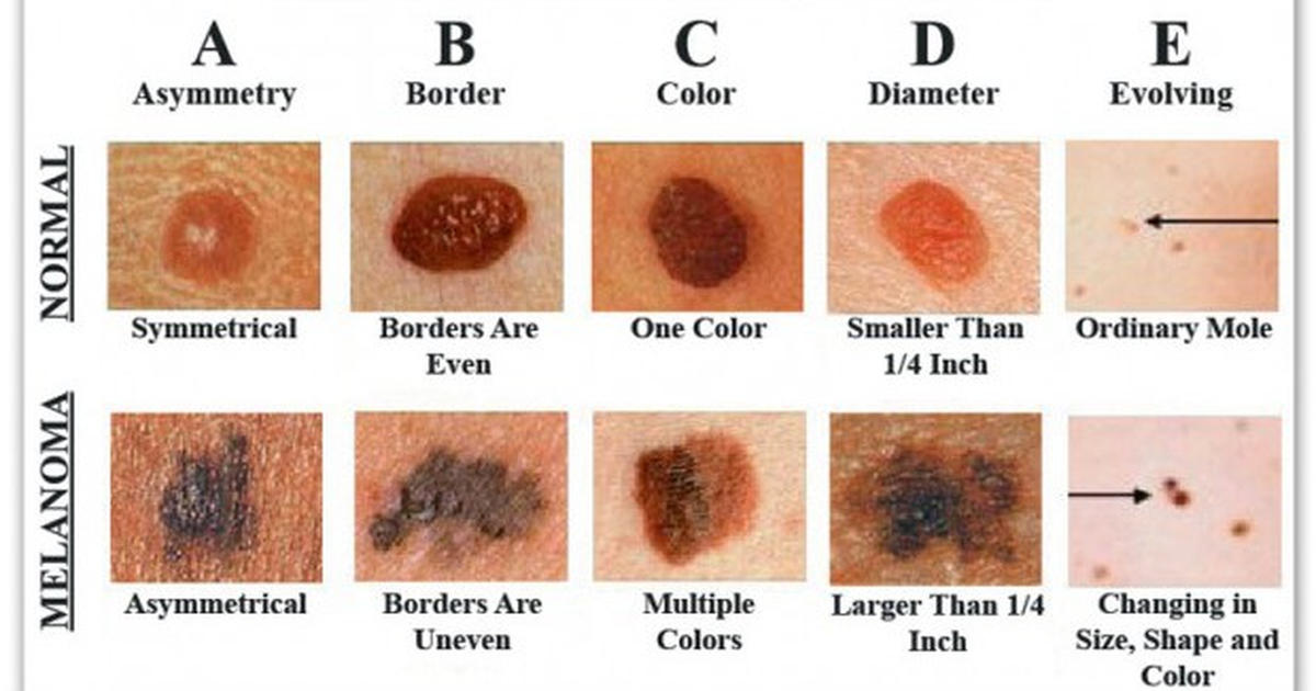How To Recognize Skin Cancer This Could Save Your Life