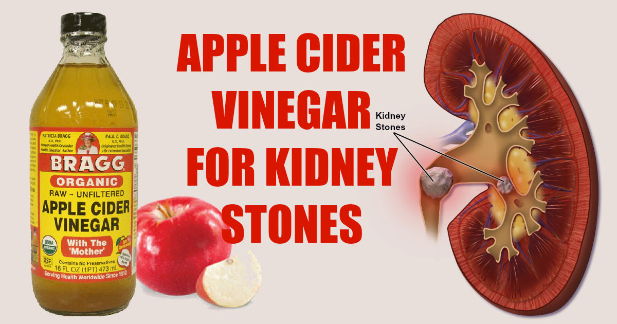apple cider vinegar for kidney stones