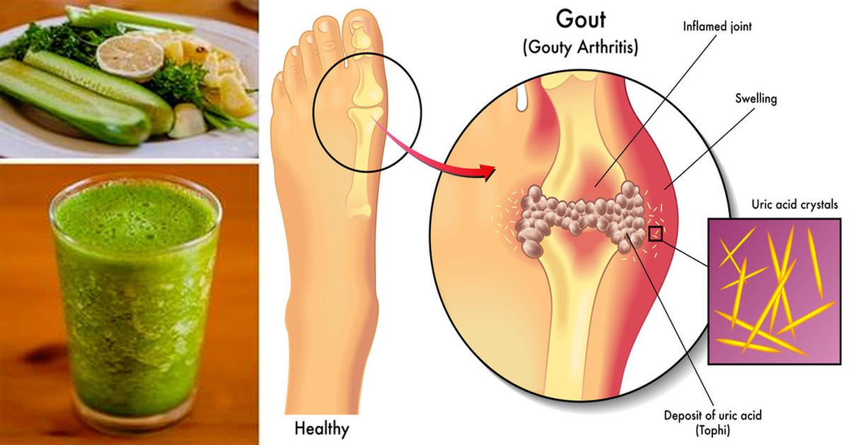 how to remove uric acid