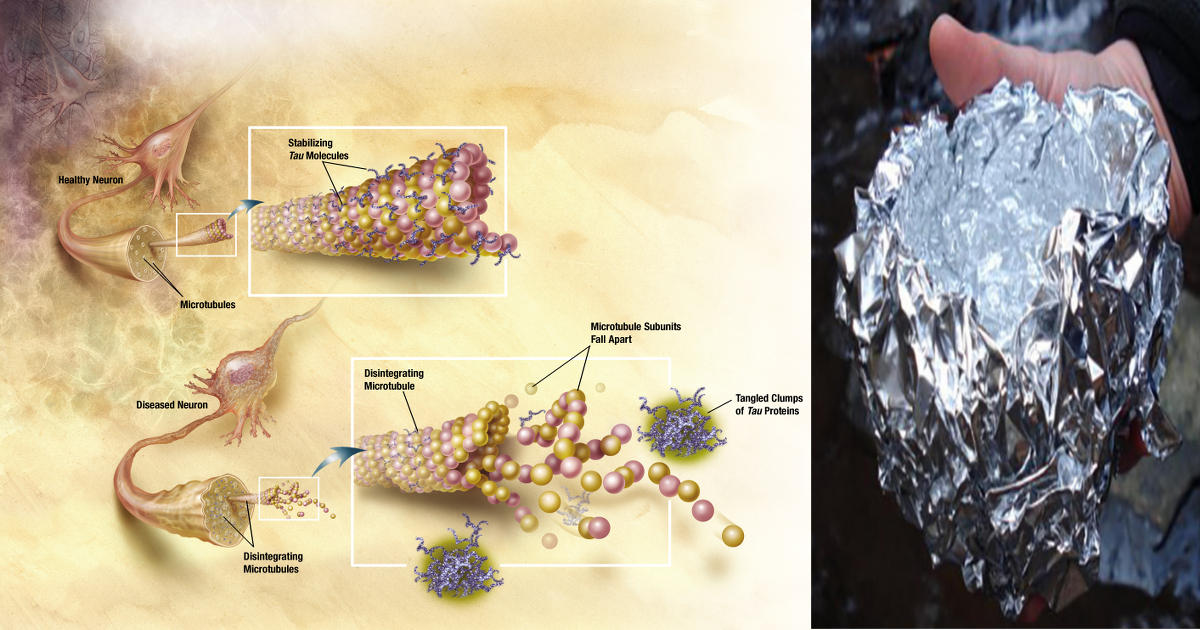 alzheimer's and aluminum