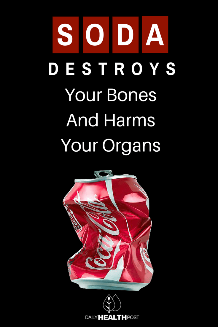 Soda Destroys Your Bones And Harms Your Organs (1)-PIN