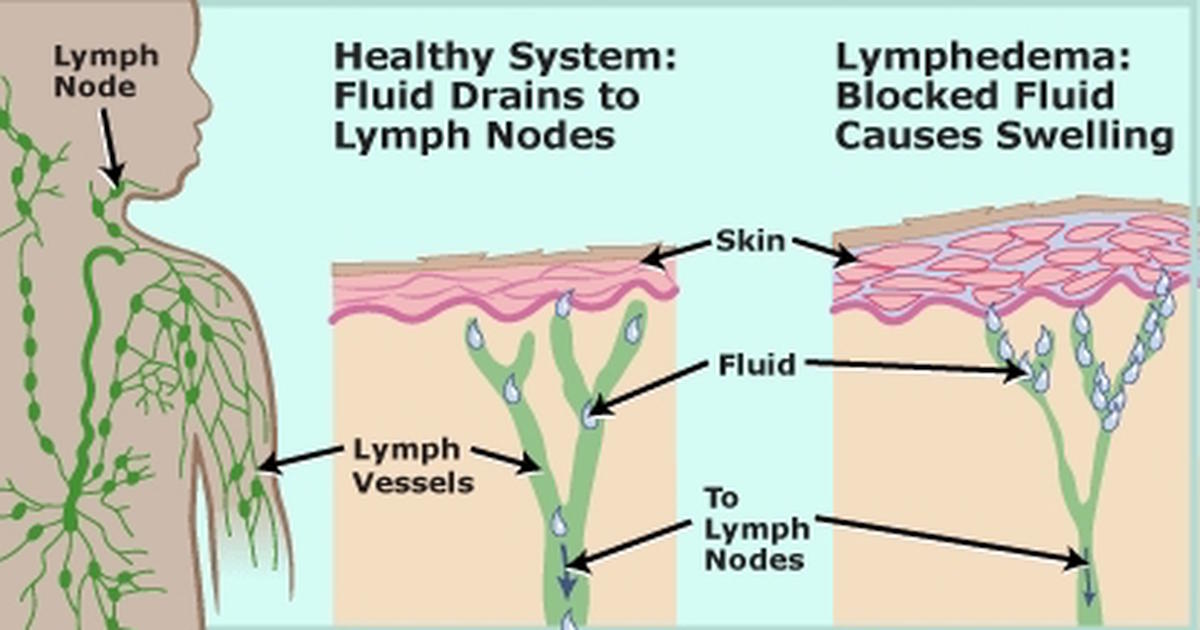 7 Easy Ways To Quickly Unclog Your Lymph Nodes To Reduce