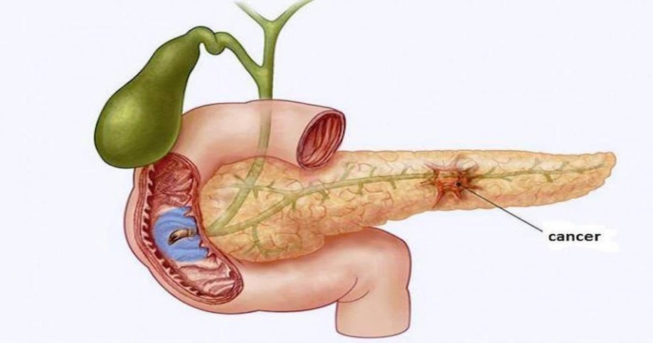 pancreas cancer