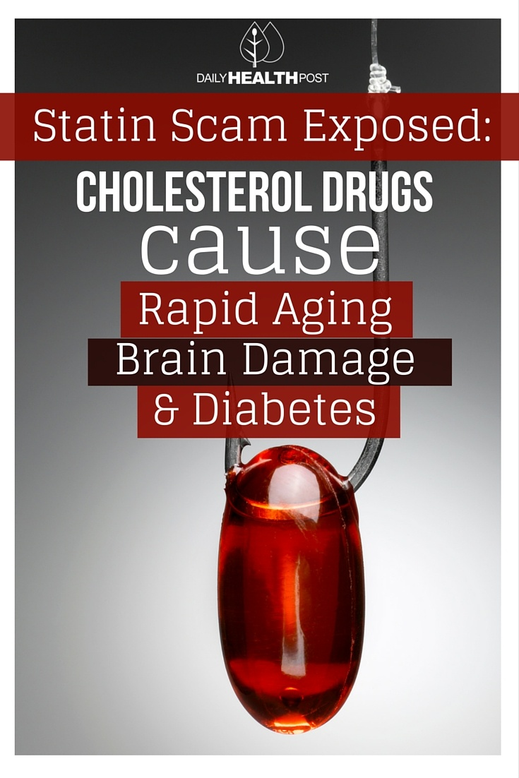 Statin Scam Exposed- Cholesterol Drugs Cause Rapid Aging, Brain Damage, And Diabetes