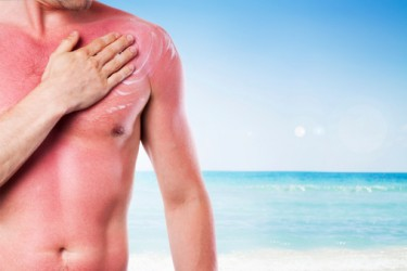 sunburn relief