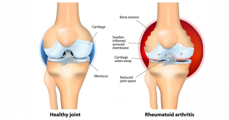 healthy joint vs arthritis
