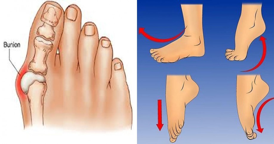 reduce bunion