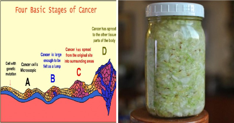 gut bacteria prevent cancer