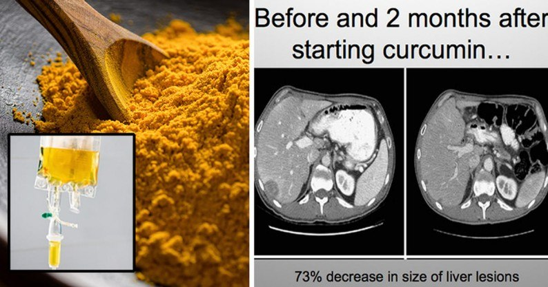 intravenous turmeric cancer