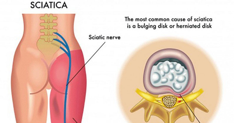 sciatica remedies