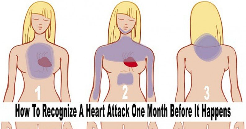 signs heart attack