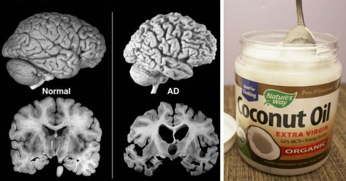 coconut oil and alzheimer's disease