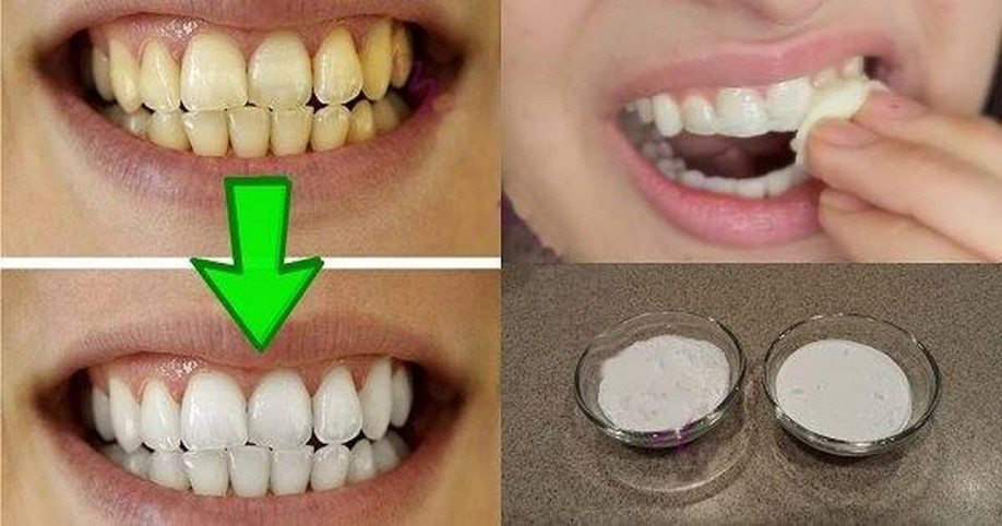 20-whiten-your-teeth-naturally-fb