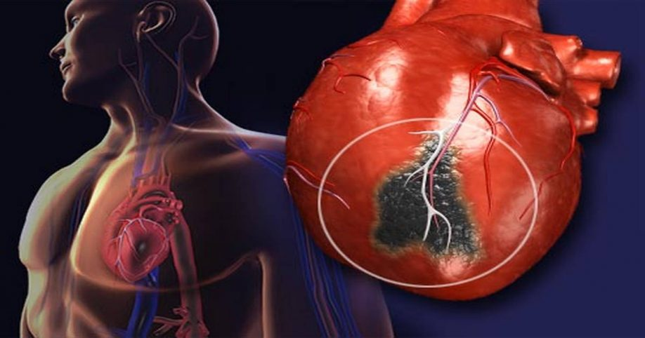 Image result for heart after smoking