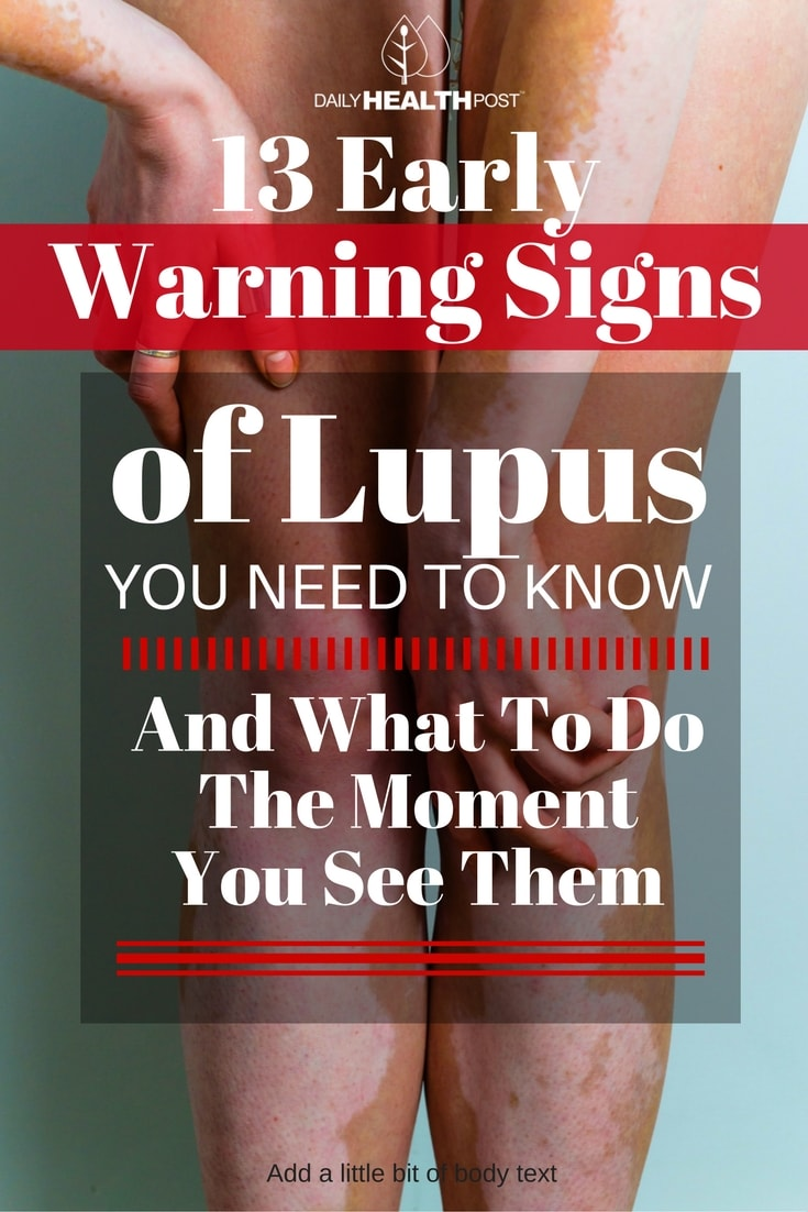 13-early-warning-signs-of-lupus-you-need-to-know