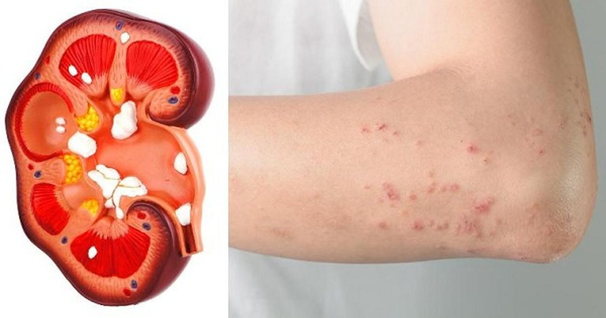 Listen To Your Body For These 10 Symptoms Of Kidney Problems
