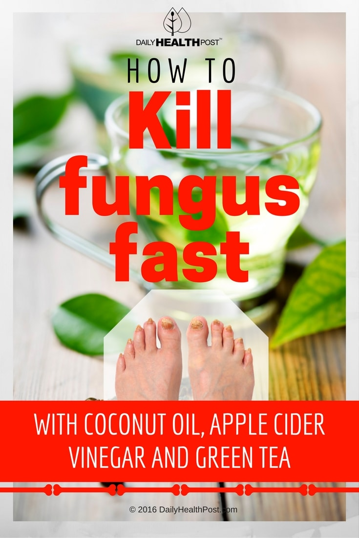 how-to-kill-fungus-fast-with-coconut-oil-apple-cider-vinegar-and-green-tea