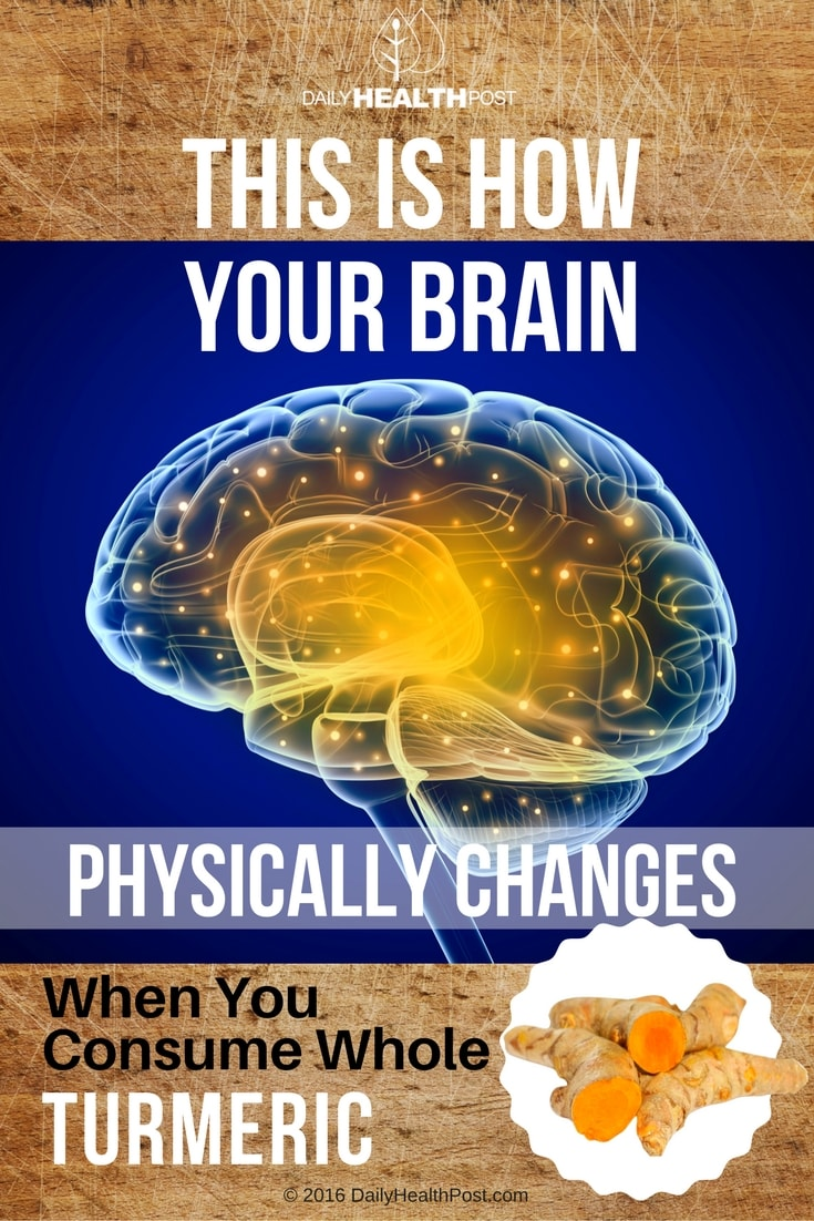 how-your-brain-physically-changes-when-you-consume-whole-turmeric