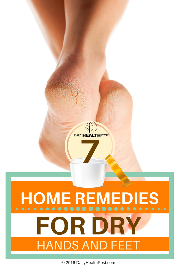 7-home-remedies-for-dry-hands-and-feet