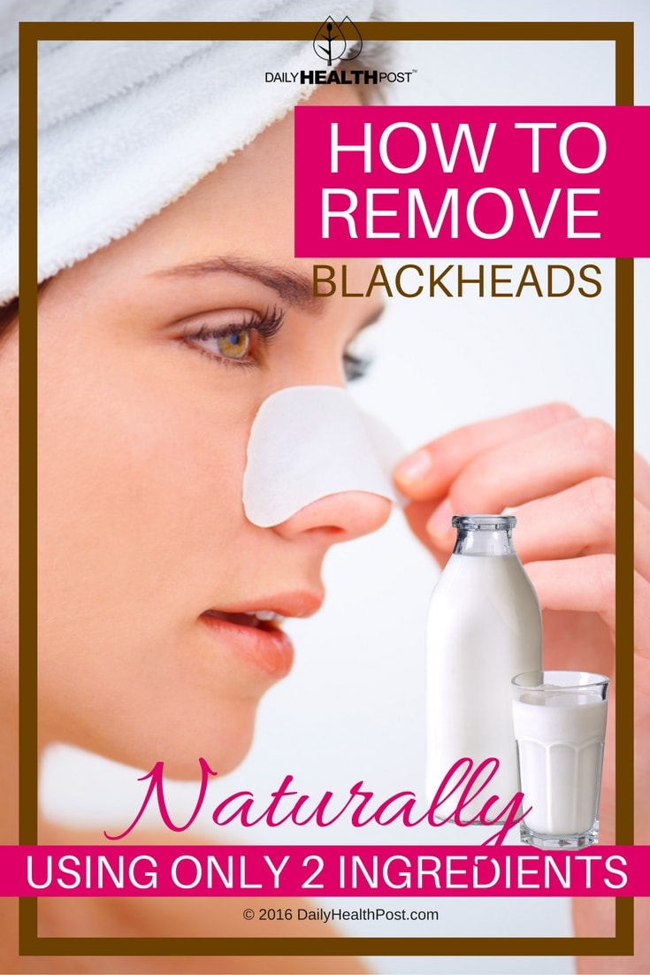 how-to-remove-blackheads-naturally-using-only-2ingredients