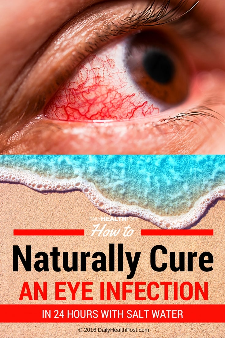 how-to-naturally-cure-an-eye-infection-in-24-hours-with-salt-water