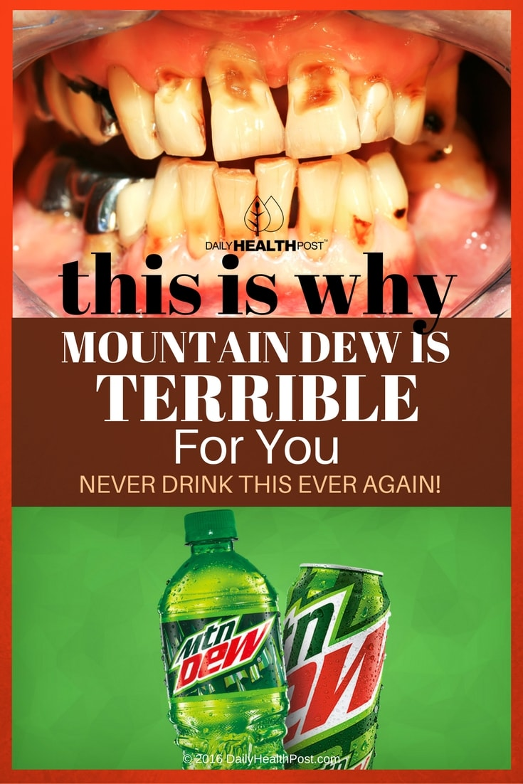 this-is-why-mountain-dew-is-terrible-for-you-never-drink