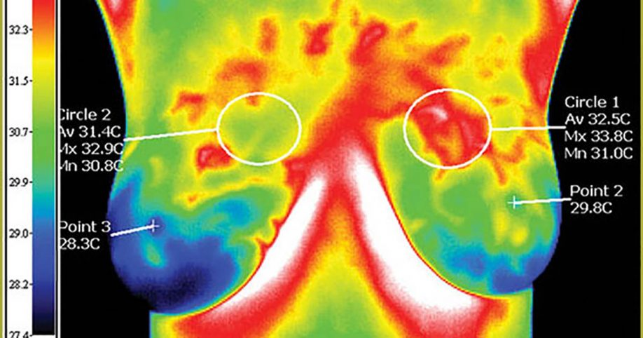 thermogram for breast cancer