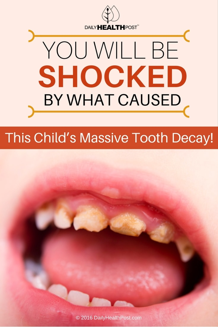 you-will-be-shocked-by-what-caused-this-childs-massive-tooth-decay