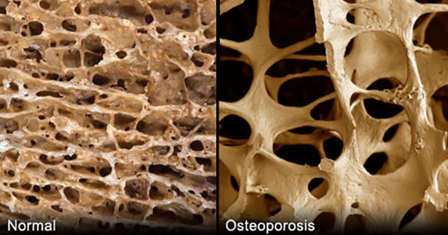 cause of osteoporosis