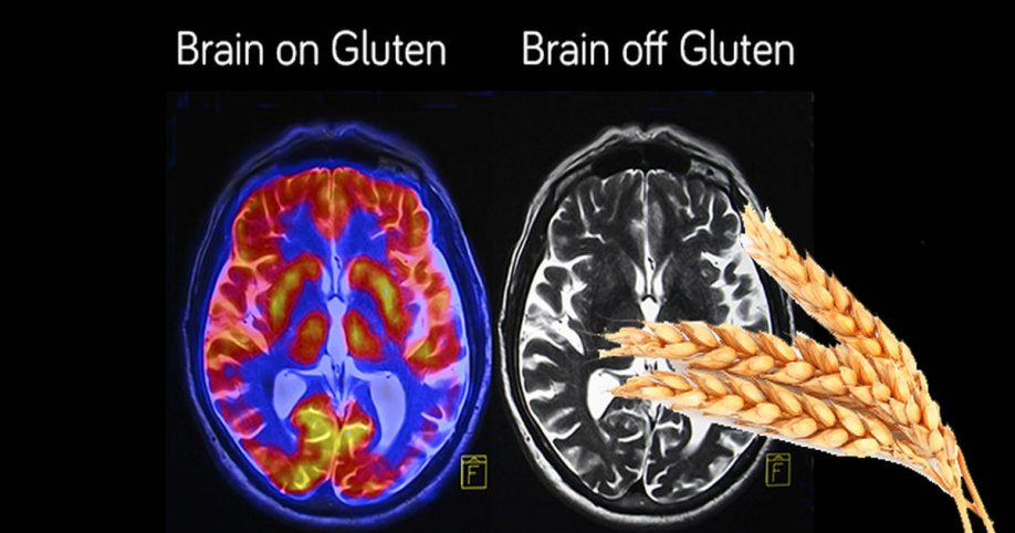 gluten and migraine